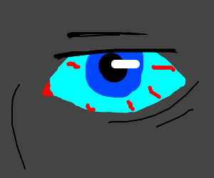 blue eye with red veins