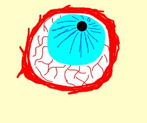 Bloody eyeball