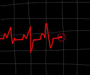 Cardiac sensor