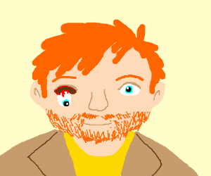 Ed Sheeran with one eye hanging out