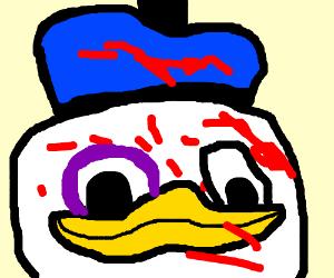 duck/pidgeon kills a person